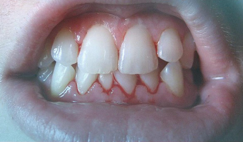 La gingivitis infantil