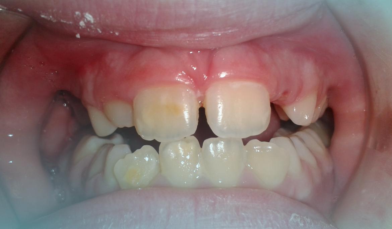 ¿Por qué les salen manchas en los dientes a los niños?