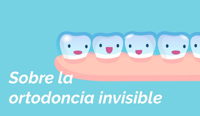 Ortodoncia Invisible Infantil