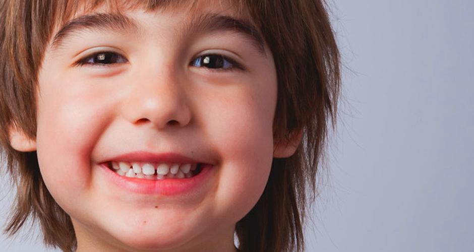 Microdoncia y macrodoncia en niños