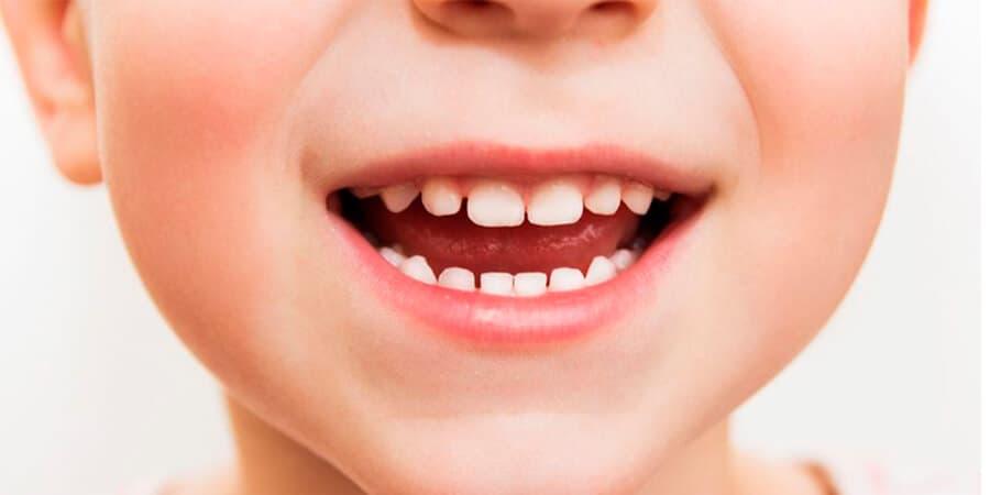 Manchas en los dientes que no son caries